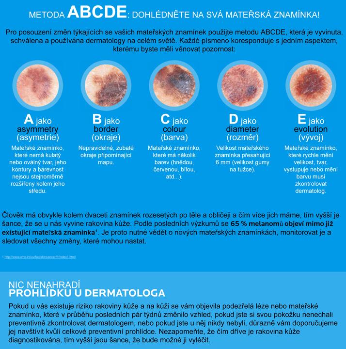 Skinchecker ABCDE Method
